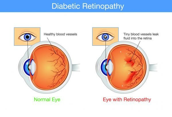 HA_Diabetic_Retinopathy_Graphic